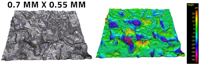 3D Medical Surface Finish and Volume Measurement of Spinal Screws